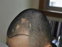 植发疤痕效果,植发留疤痕吗?